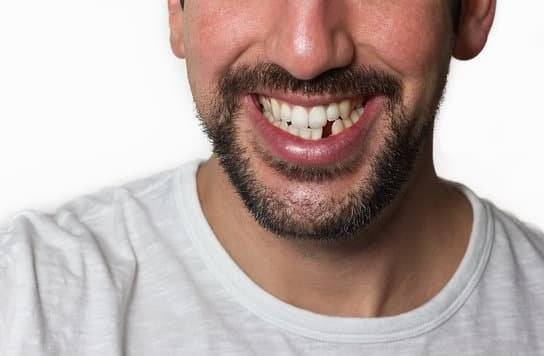 We Can Fix Your Missing Teeth